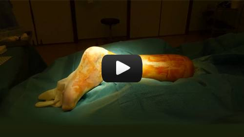Achilles Tendon Rupture - Surgical Repair