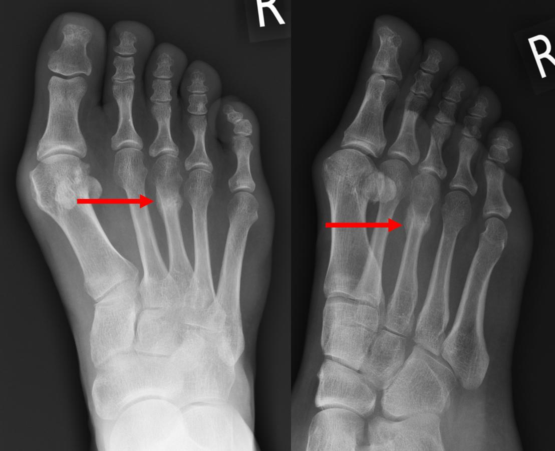 Stress Fractures | Ankle Fractures | Hertfordshire UK